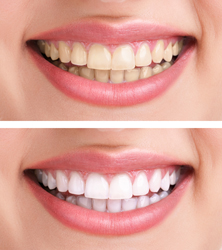 Teeth Whitening provided by Dr. Eric E. Rader and Rader Cosmetic and Family Dentistry in Roswell, GA