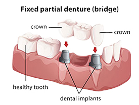 Crowns provided by Dr. Eric E. Rader and Rader Cosmetic and Family Dentistry in Roswell, GA