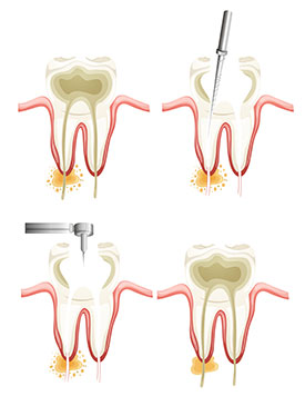 Root canals provided by Dr. Eric E. Rader and Rader Cosmetic and Family Dentistry in Roswell, GA