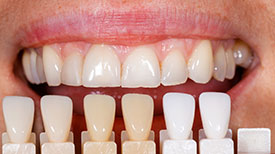 Porcelain Veneers provided by Dr. Eric E. Rader and Rader Cosmetic and Family Dentistry in Roswell, GA